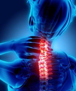 首の痛みストレートネック