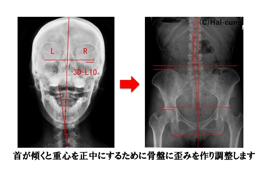 首の歪みと骨盤